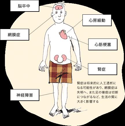 脳卒中・心房細動・心筋梗塞・腎症・神経障害・網膜症 腎症は将来的に人工透析になる可能性があり、網膜症は失明へ、また足の壊疽は切断につながるなど、生活の質に大きく影響する